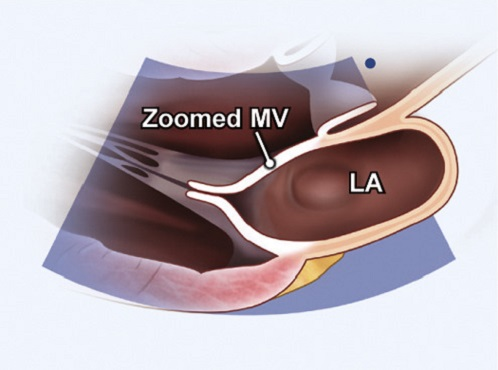 Echocardiography view: PLAX zoomed MV, Window: Left parasternal window