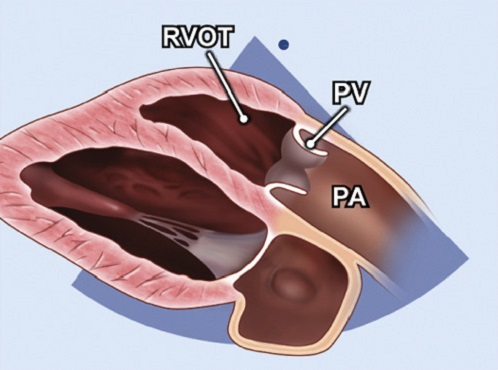 Echocardiography view: PLAX RV outflow, Window: Left parasternal window