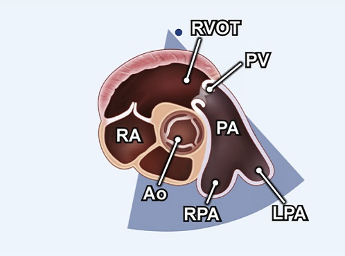Echocardiography view: PSAX (level great vessels) focus on PV, Window: Left parasternal window