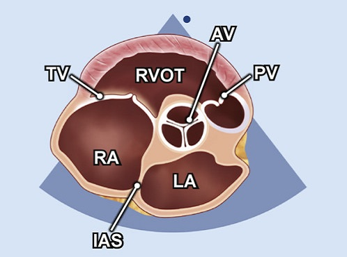 Echocardiography view: PSAX (level great vessels) focus on AV, Window: Left parasternal window