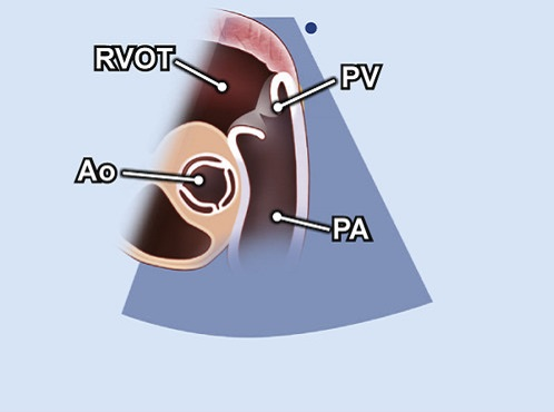 Echocardiography view: PSAX focus on PV and PA, Window: Left parasternal window