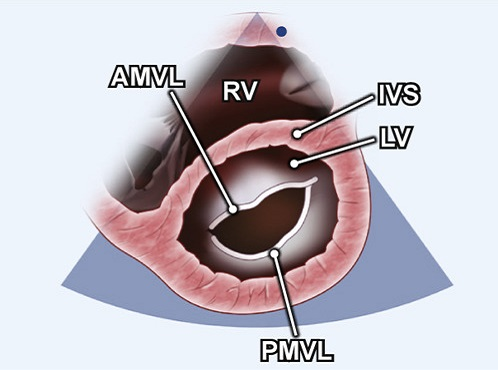 Echocardiography view: PSAX (level of MV), Window: Left parasternal window