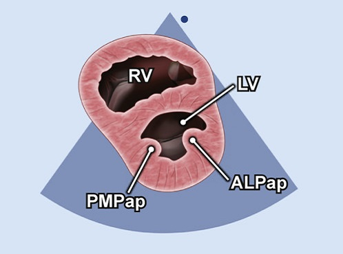 Echocardiography view: PSAX (level of papillary muscles), Window: Left parasternal window