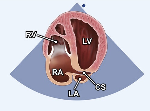 Echocardiography view: A4C posterior angulation, Window: Apical window
