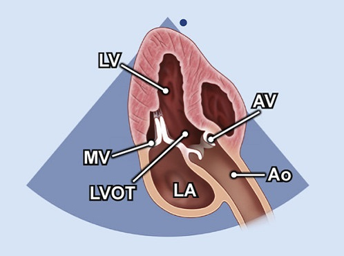 Echocardiography view: A3C or APLAX (Apical 3 chamber, Apical long axis), Window: Apical window