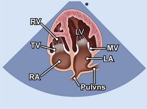 Echocardiography view: A4C LA pulmonary veins focus, Window: Apical window