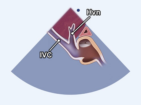 Echocardiography view: SC window (Hepatic vein), Window: Subcostal window