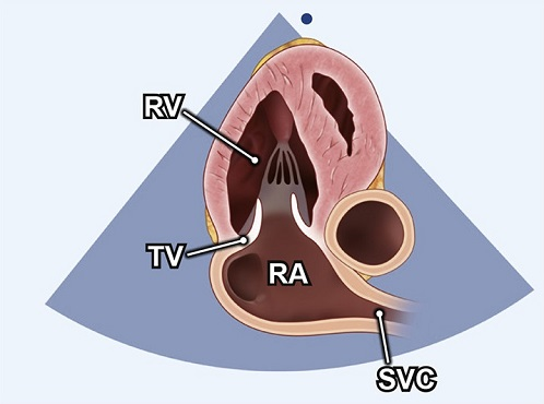Echocardiography view: RV 2C (Right ventricular two-chamber), Window: Apical window