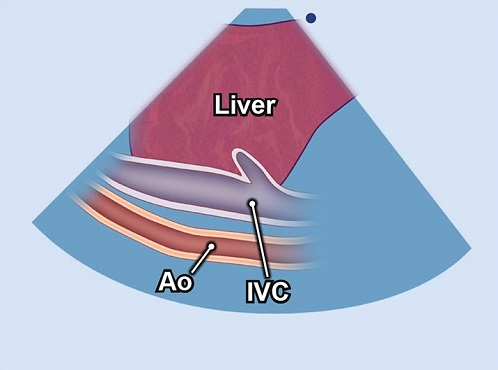 Echocardiography view: Right lateral IVC, Window: Subcostal window