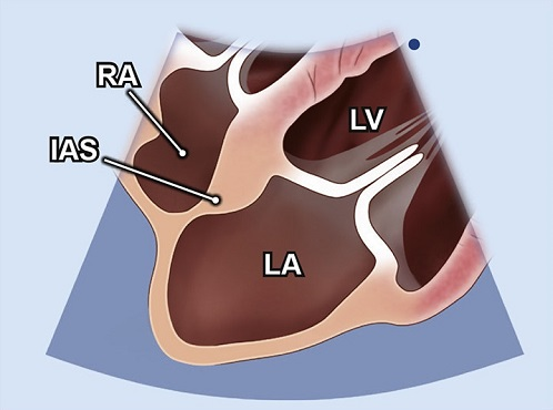 Echocardiography view: Focused interatrial septum, Window: Subcostal window