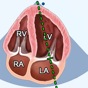 A4C (apical 4 chamber view) CW doppler of mitral valve