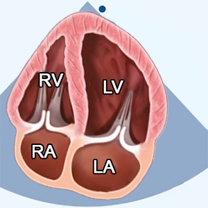 Apical 4 chamber (A4C) focused left atrium