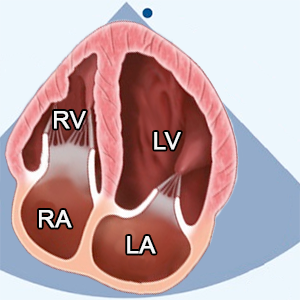 Apical 4 Chamber View (A4C) zoomed left ventricle