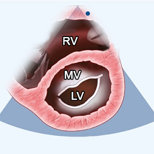 PSAX (parasternal short axis) level of MV (mitral valve)