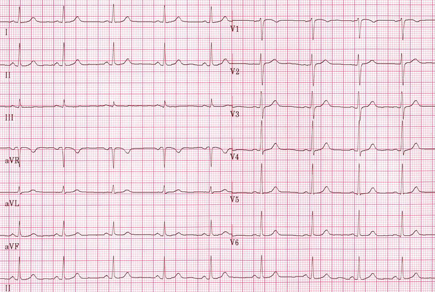 ECG sinus rhythm with p waves and QRS complexes