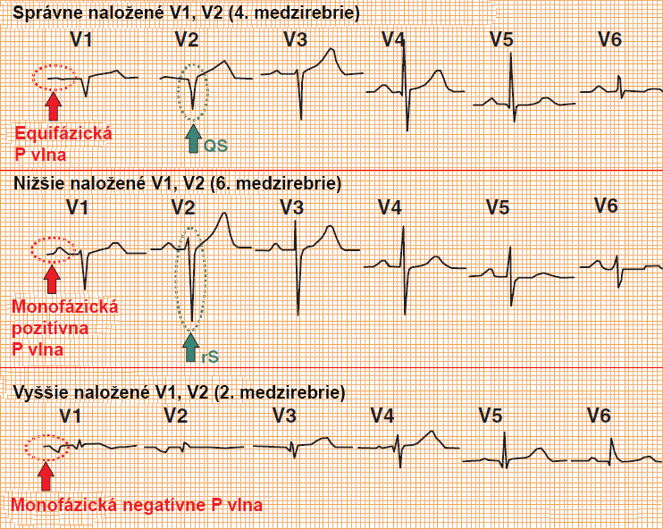Correct and incorrect position V1, V2. And differential diagnosis between left anterior hemiblock (LAH) and old anteroseptal infarction