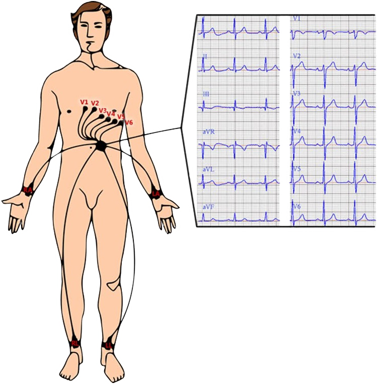 ECG chest and limb electrodes position and ECG leads