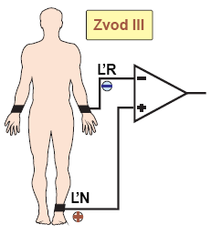 ECG bipolar III lead between two electrodes left arm (LA) and left leg (LL)