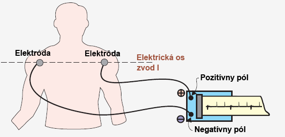 Registration ECG lead I axis with positive and negative pole