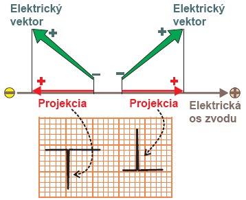 Voltage vector projection on ECG with positive and negative deflection