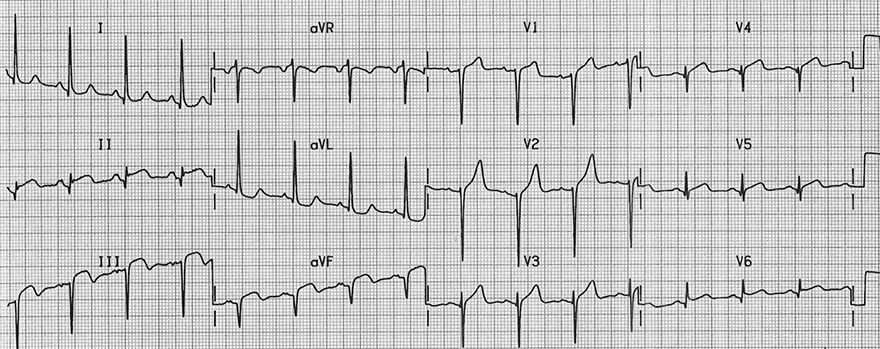 ECG left axis deviation and inferior wall stemi infarction