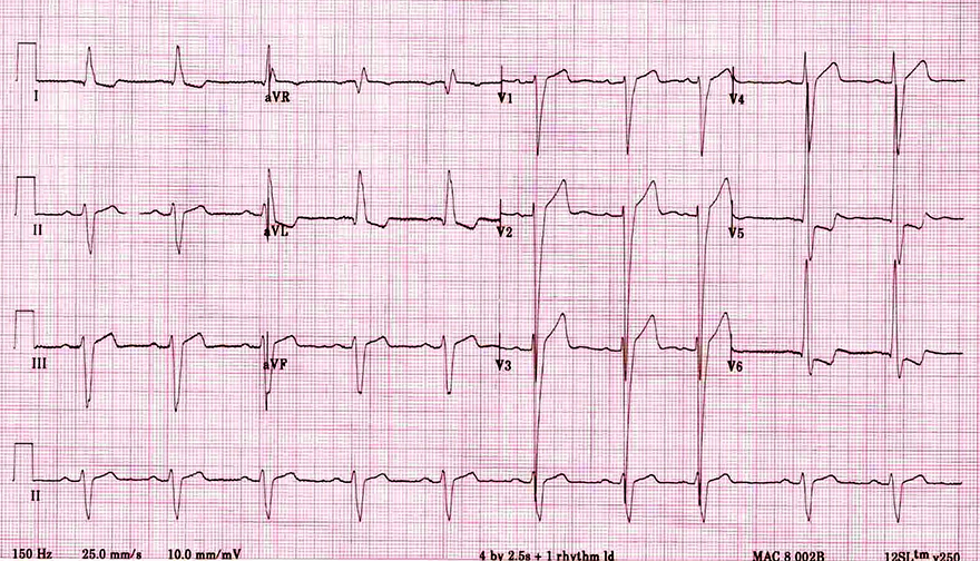 ECG left axis deviation and left ventricular hypertrophy