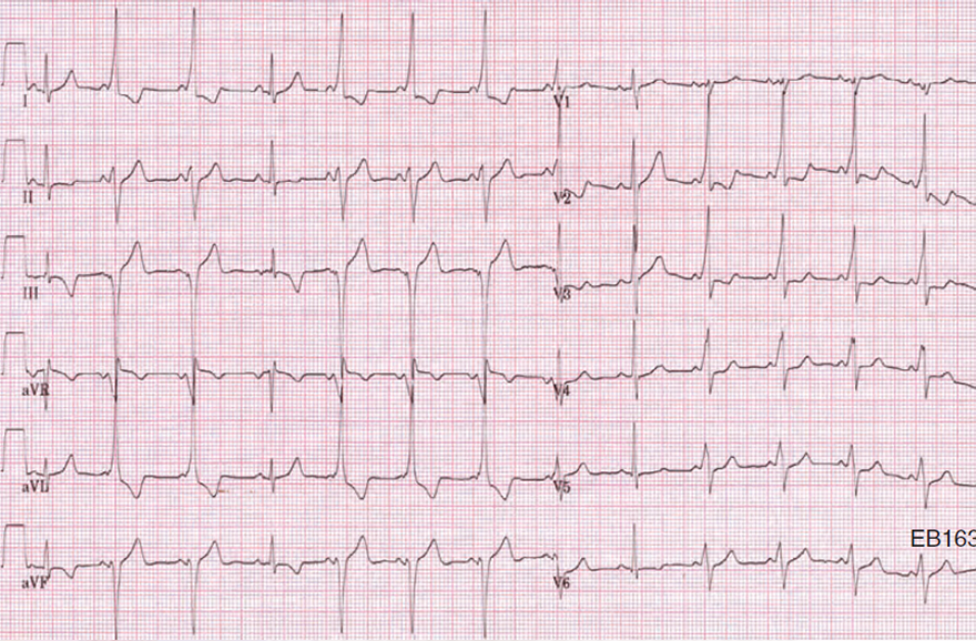 ECG left axis deviation and WPW syndrome type B