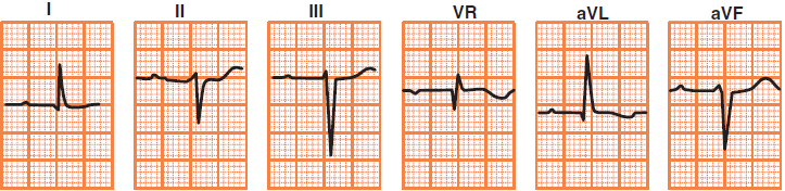Limb leads ECG deflection in left heart axis deviation