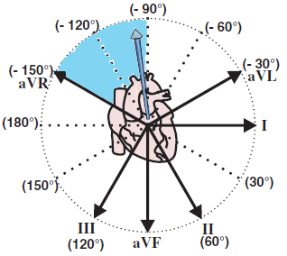 Electrical vector and extreme right axis deviation in limb leads