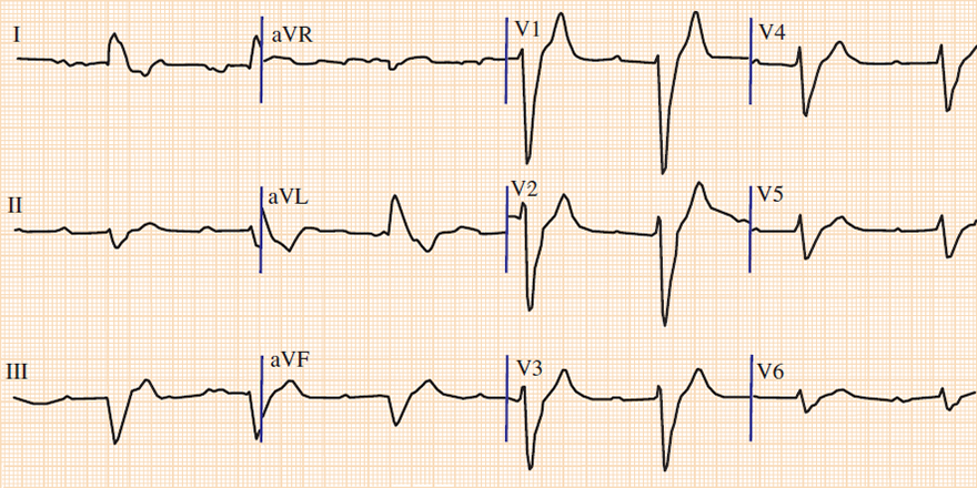 ECG extreme axis deviation and hyperkalemia 7,2mmol