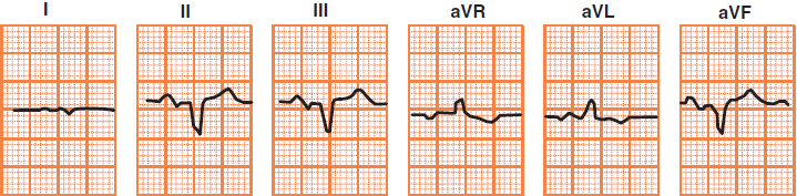 Limb leads ECG deflection in extreme right axis deviation