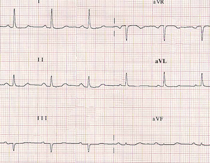 ecg paper with correct RA LA (right arm, left arm) limb electrodes