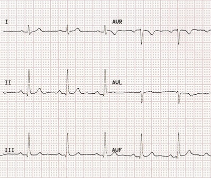 ecg paper with correct RA LL (right arm, left leg) limb electrodes