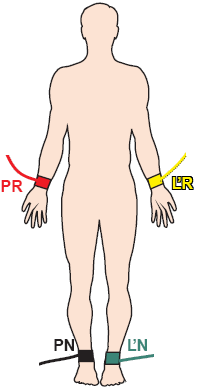 Correct limb electrodes position, left arm (LA), right arm (RA), right leg - neutral, left leg