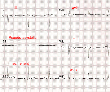 ecg paper with reversal RA RL (right arm, right leg) limb electrodes, pseudo-asystole II