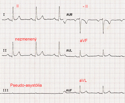 ecg paper with reversal LA RL (left arm, right leg) limb electrodes, pseudo-asystole III