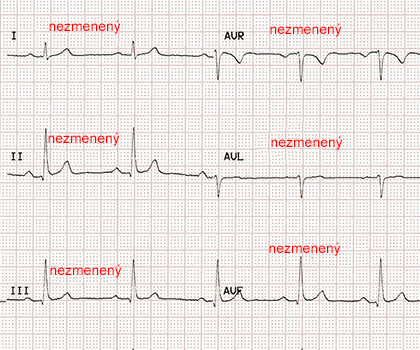 Unchanged ECG paper after reversa electrodes LL and RL