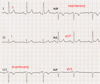 ecg paper with reversal LA LL (left arm, left leg) limb electrodes