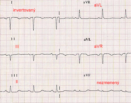 ecg paper with reversal RA LA (right arm, left arm) limb electrodes