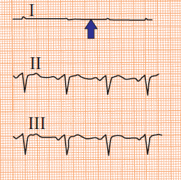 ECG pseudo-asystole in lead I, RA/RL (right arm, right leg) and LA/LL (left arm, left leg) reversal electrodes