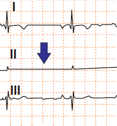 ECG pseudo-asystole in lead II, RA/RL (right arm, right leg) reversal electrodes