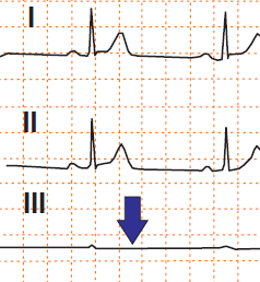 ECG pseudo-asystole in lead III, LA/RL (left arm, right arm) reversal electrodes
