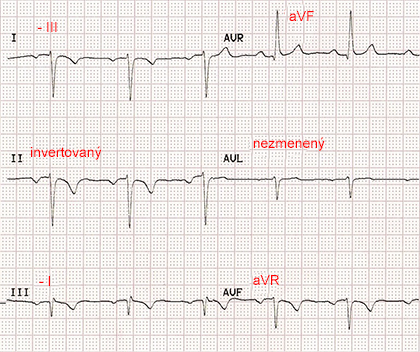 ecg paper with reversal RA LL (right arm, left leg) limb electrodes