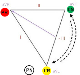 Reversal LA and LL (left arm, left leg) limb electrodes position in einthoven triangle