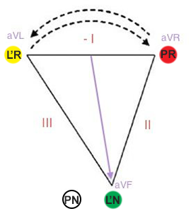 Reversal ECG LA and RA (left arm, right arm) electrodes position in einthoven triangle