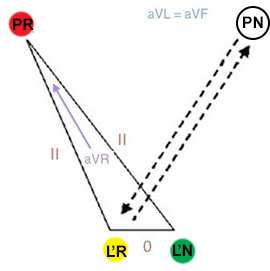 Reversal LA and RL (right arm, right leg) limb electrodes position and collapses einthoven triangle