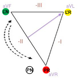 Reversal RA and LL (right arm, left leg) limb electrodes position in einthoven triangle