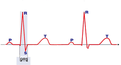 ECG QRS inteval represents duration of ventricular depolarization, contains q wave, r wave, s wave