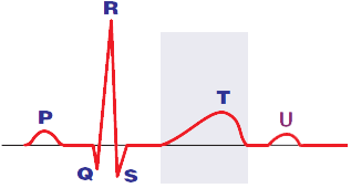 ECG T wave corresponds to phase 3 of the action potential. Represents the repolarization of the ventricles