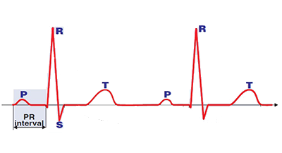 PR (PQ) inteval bengins at the onset of te P wave ends at the QRS complex